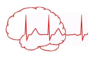 Manejo clínico de las consecuencias cognitivas de las arritmias
