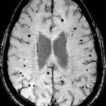 Microhemorragias cerebrales